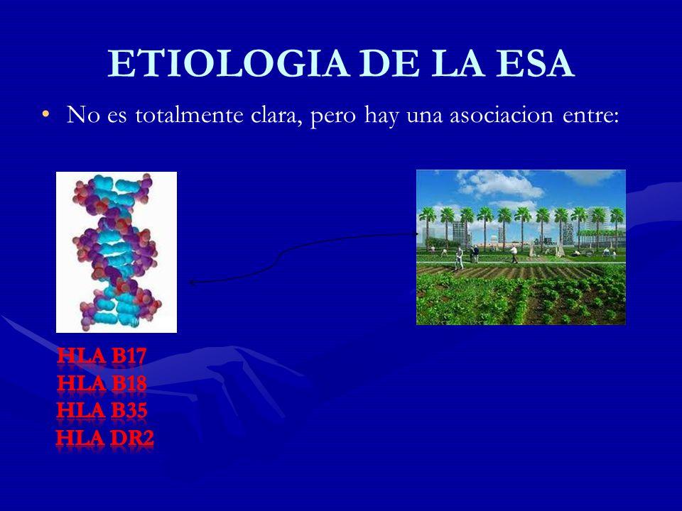 ETIOLOGIA DE LA ESA No es totalmente clara, pero hay una asociacion entre: HLA B17. HLA B18. HLA B35.