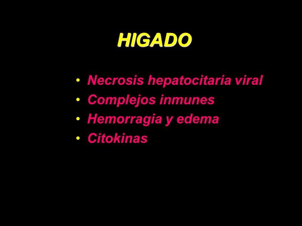HIGADO Necrosis hepatocitaria viral Complejos inmunes