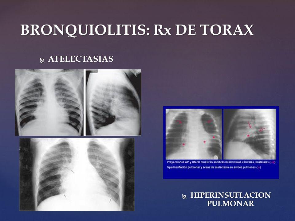 BRONQUIOLITIS: Rx DE TORAX