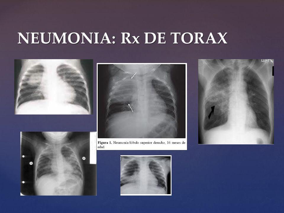 NEUMONIA: Rx DE TORAX