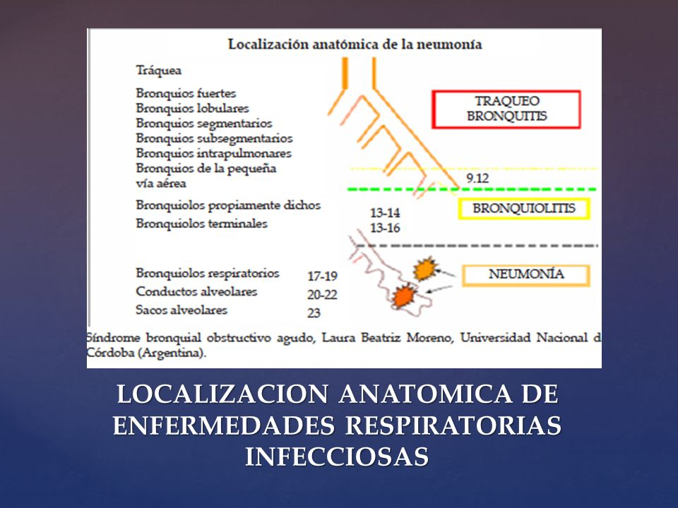 LOCALIZACION ANATOMICA DE ENFERMEDADES RESPIRATORIAS INFECCIOSAS
