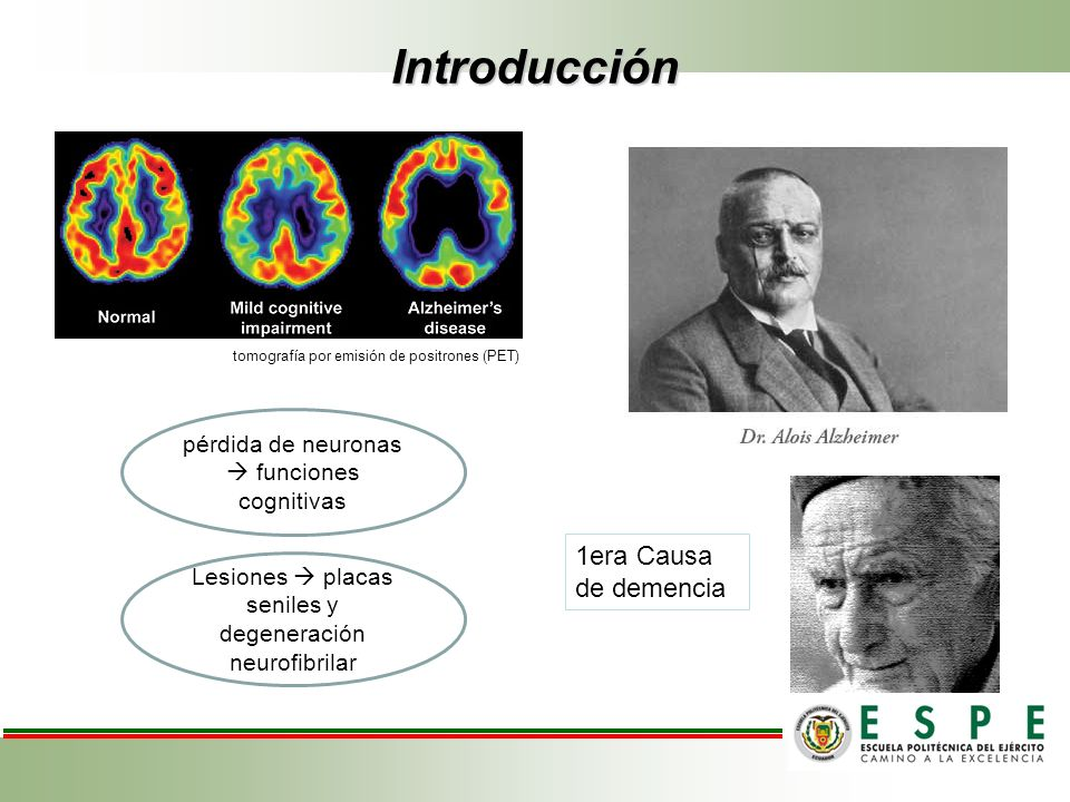 Introducción 1era Causa de demencia