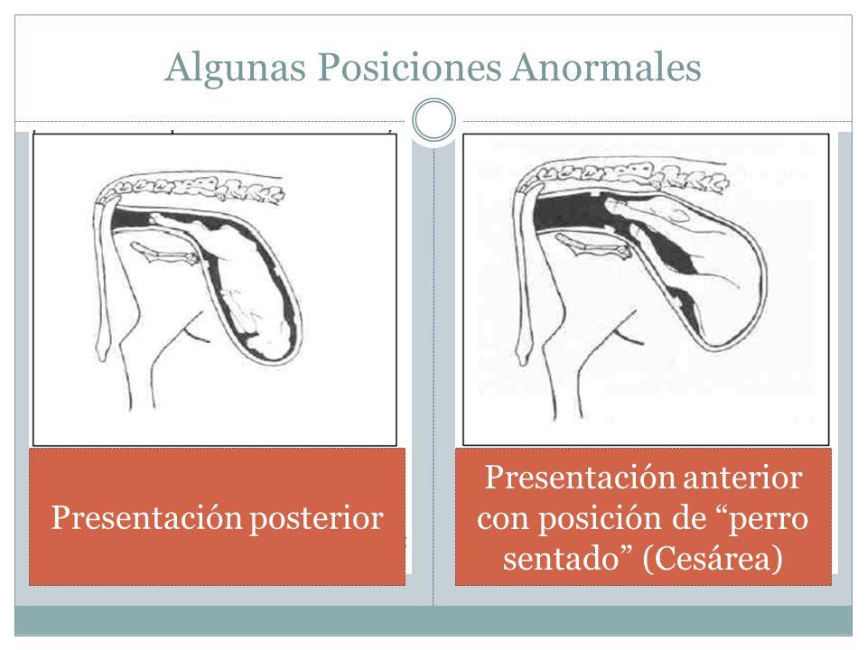 Algunas Posiciones Anormales
