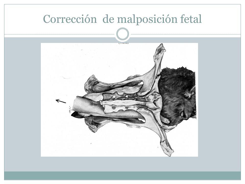 Corrección de malposición fetal