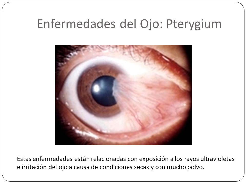 Enfermedades del Ojo: Pterygium