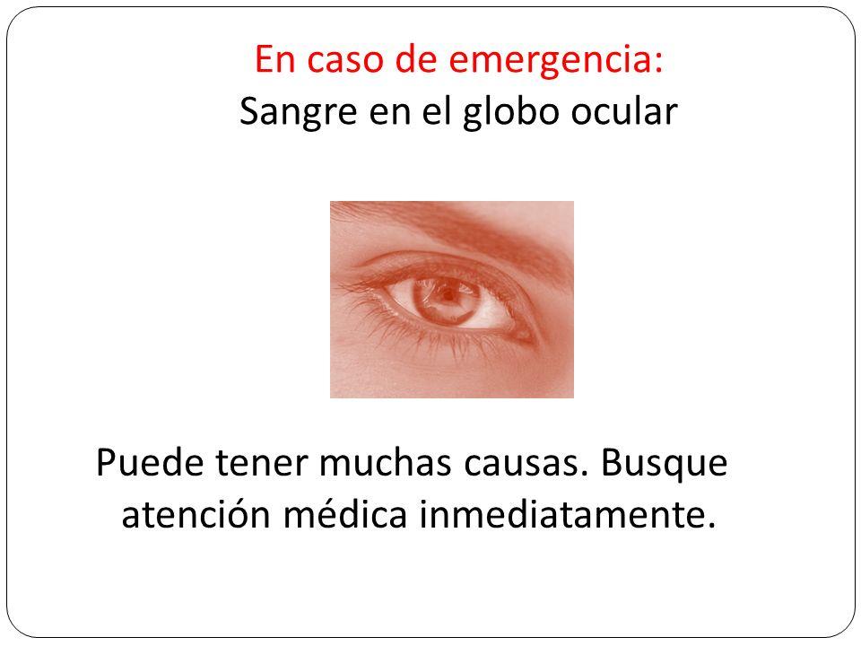En caso de emergencia: Sangre en el globo ocular