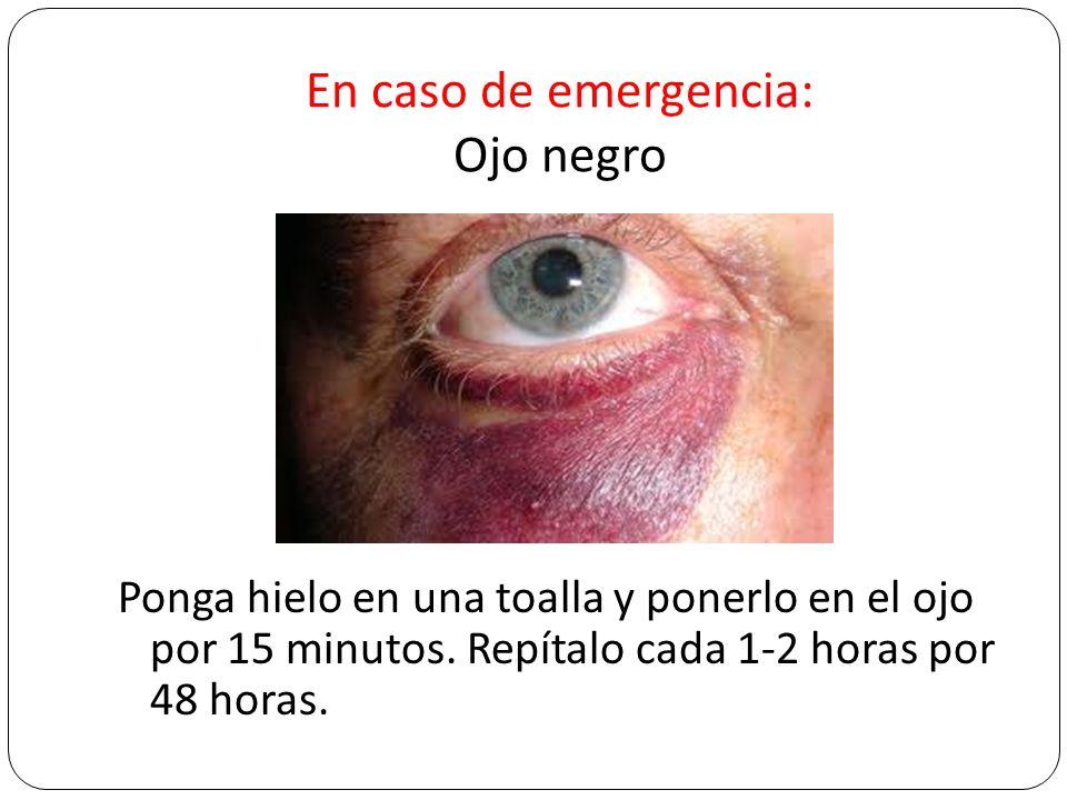 En caso de emergencia: Ojo negro