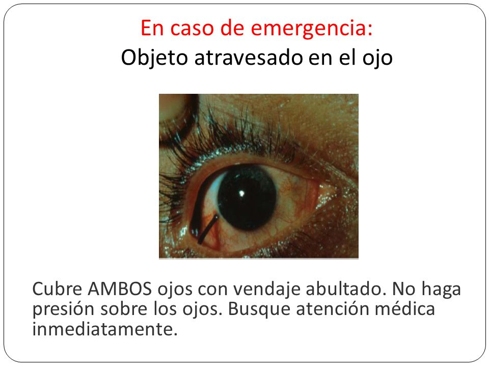 En caso de emergencia: Objeto atravesado en el ojo