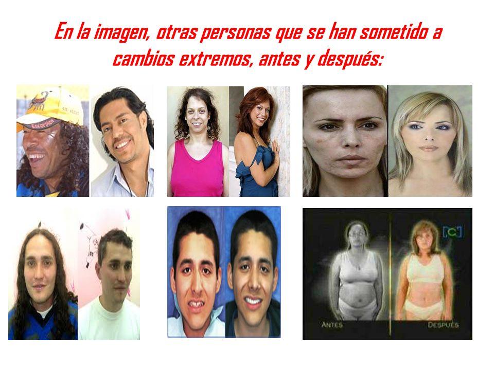 En la imagen, otras personas que se han sometido a cambios extremos, antes y después: