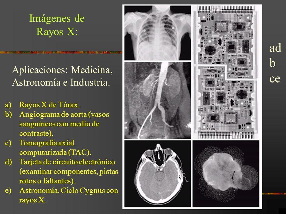 ad b ce Imágenes de Rayos X: