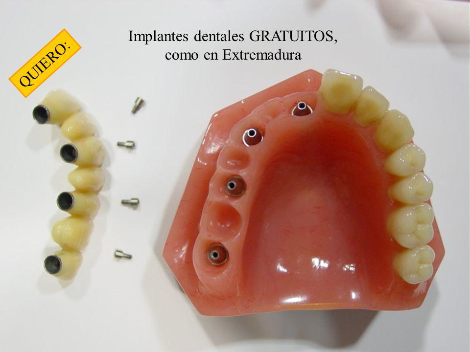 Implantes dentales GRATUITOS, como en Extremadura