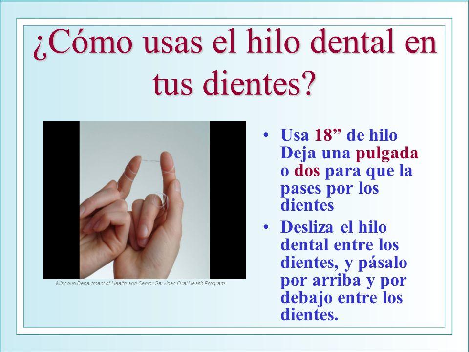 ¿Cómo usas el hilo dental en tus dientes