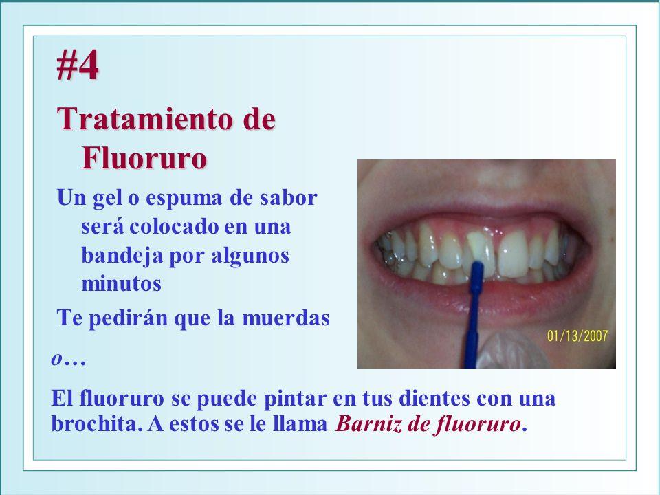 #4 Tratamiento de Fluoruro