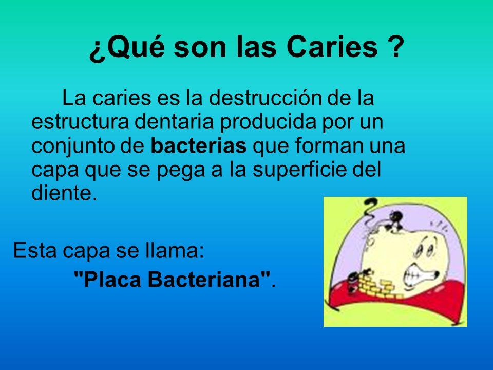 ¿Qué son las Caries Esta capa se llama: Placa Bacteriana .