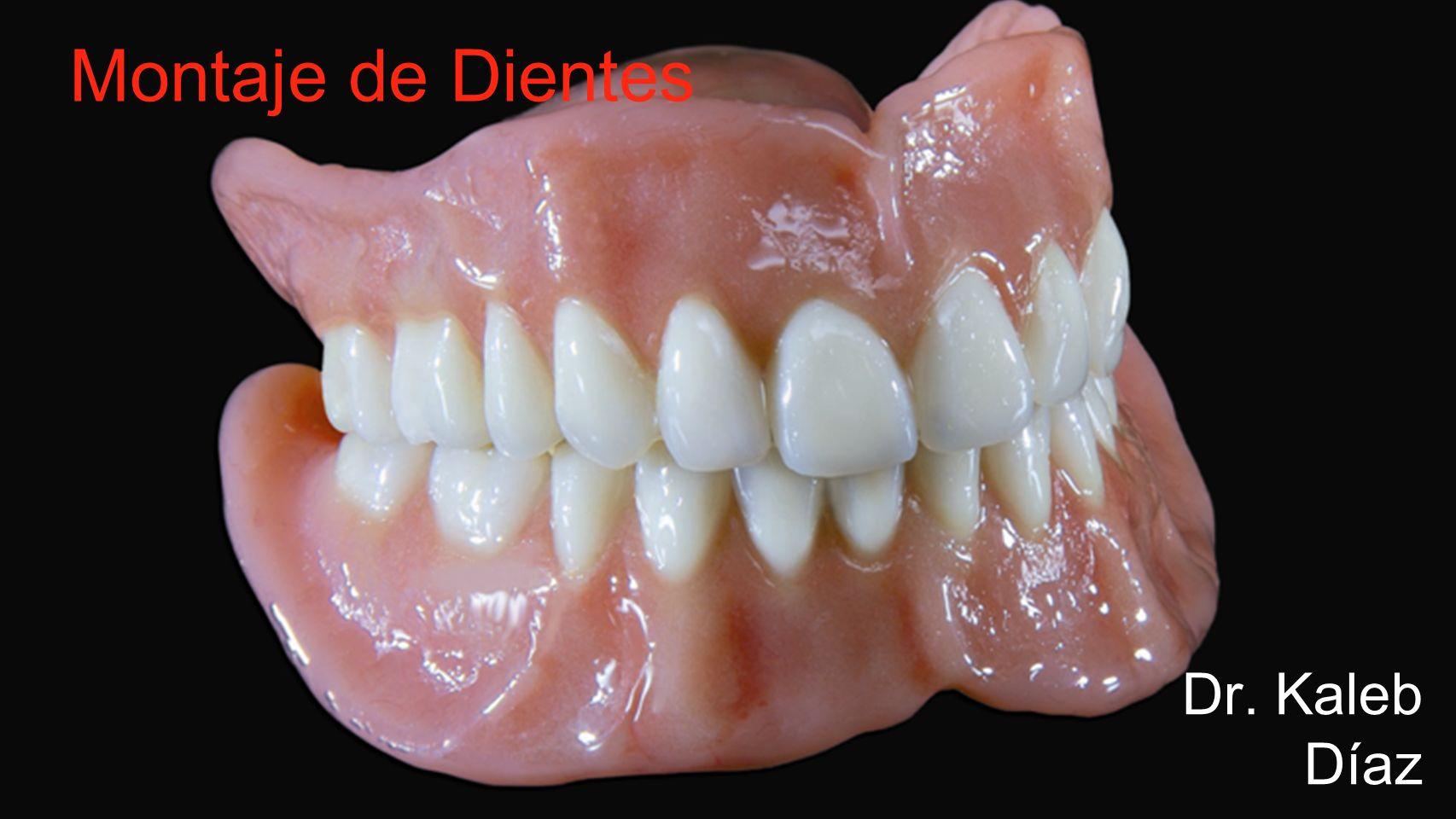 Montaje de Dientes Dr. Kaleb Díaz