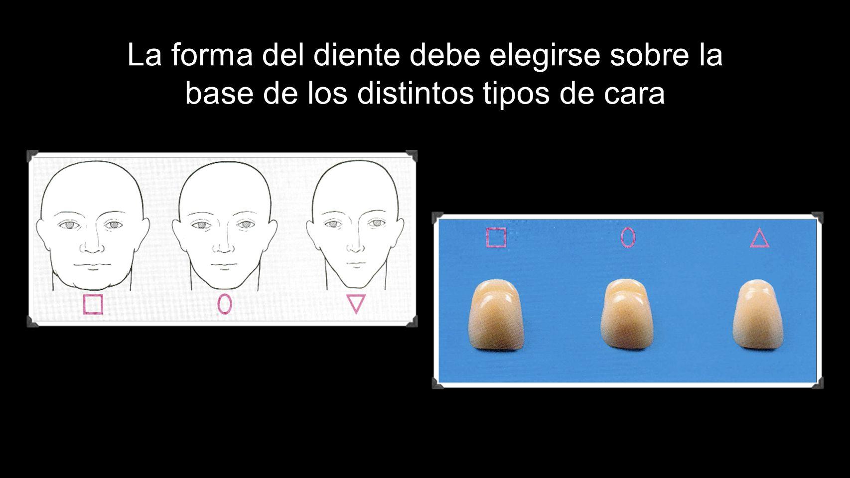 La forma del diente debe elegirse sobre la base de los distintos tipos de cara