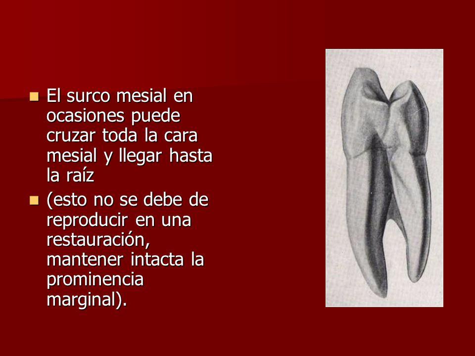 El surco mesial en ocasiones puede cruzar toda la cara mesial y llegar hasta la raíz