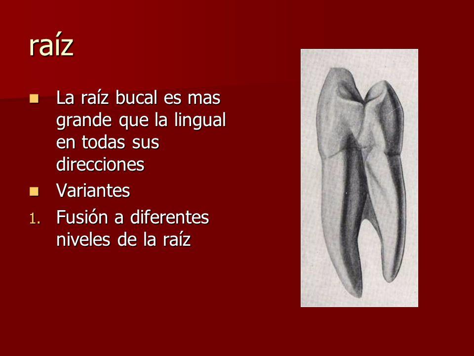 raíz La raíz bucal es mas grande que la lingual en todas sus direcciones.