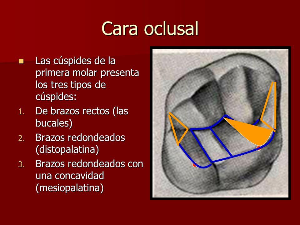 Cara oclusal Las cúspides de la primera molar presenta los tres tipos de cúspides: De brazos rectos (las bucales)