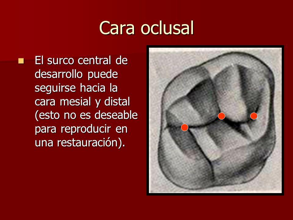 Cara oclusal El surco central de desarrollo puede seguirse hacia la cara mesial y distal (esto no es deseable para reproducir en una restauración).
