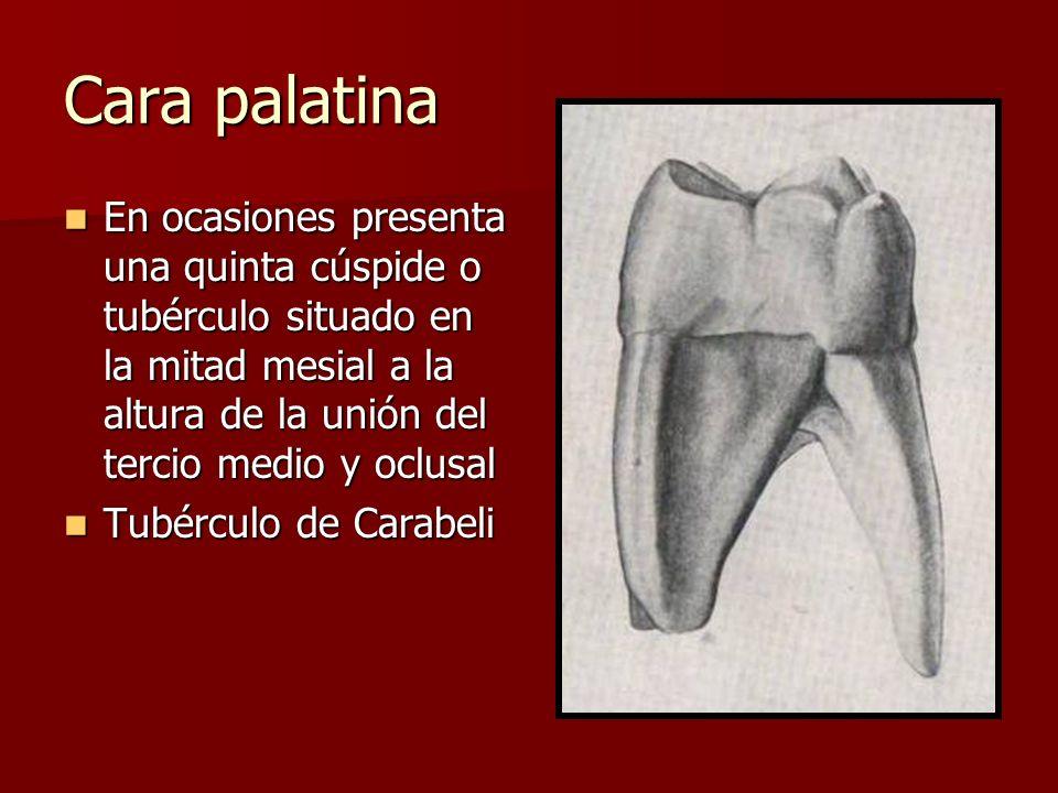Cara palatina En ocasiones presenta una quinta cúspide o tubérculo situado en la mitad mesial a la altura de la unión del tercio medio y oclusal.