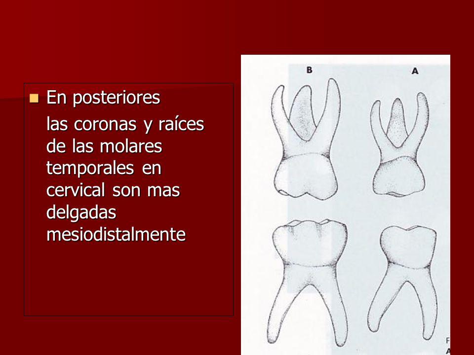 En posteriores las coronas y raíces de las molares temporales en cervical son mas delgadas mesiodistalmente.