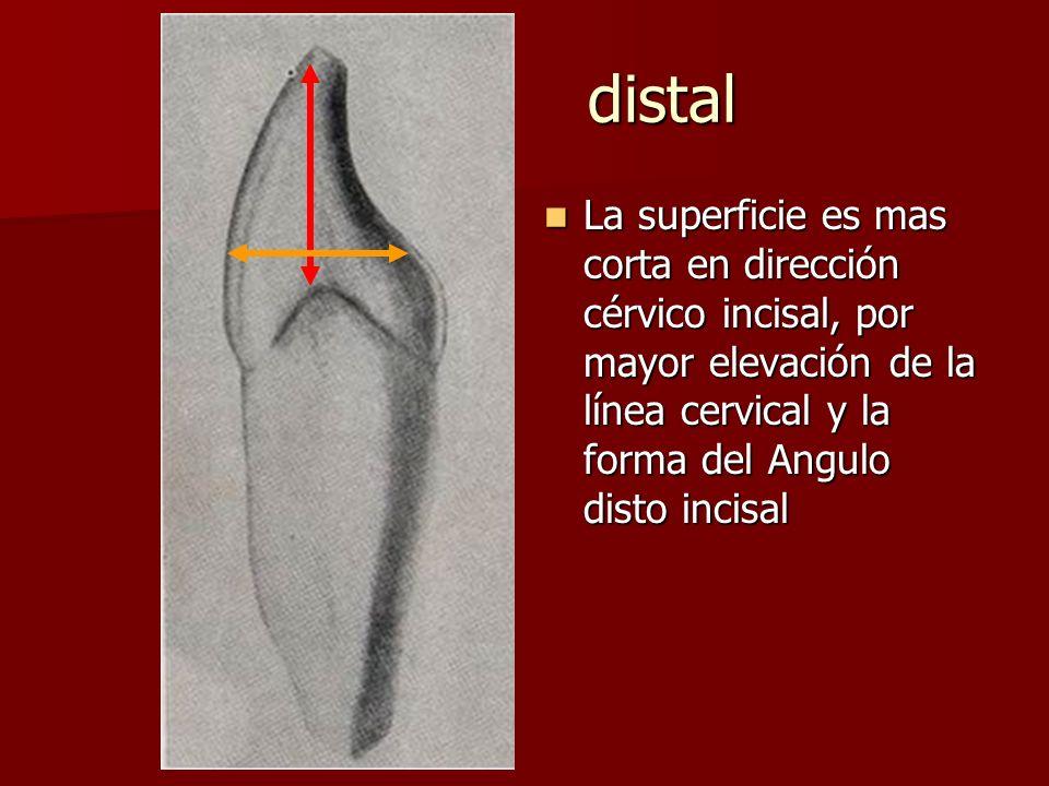 distal La superficie es mas corta en dirección cérvico incisal, por mayor elevación de la línea cervical y la forma del Angulo disto incisal.