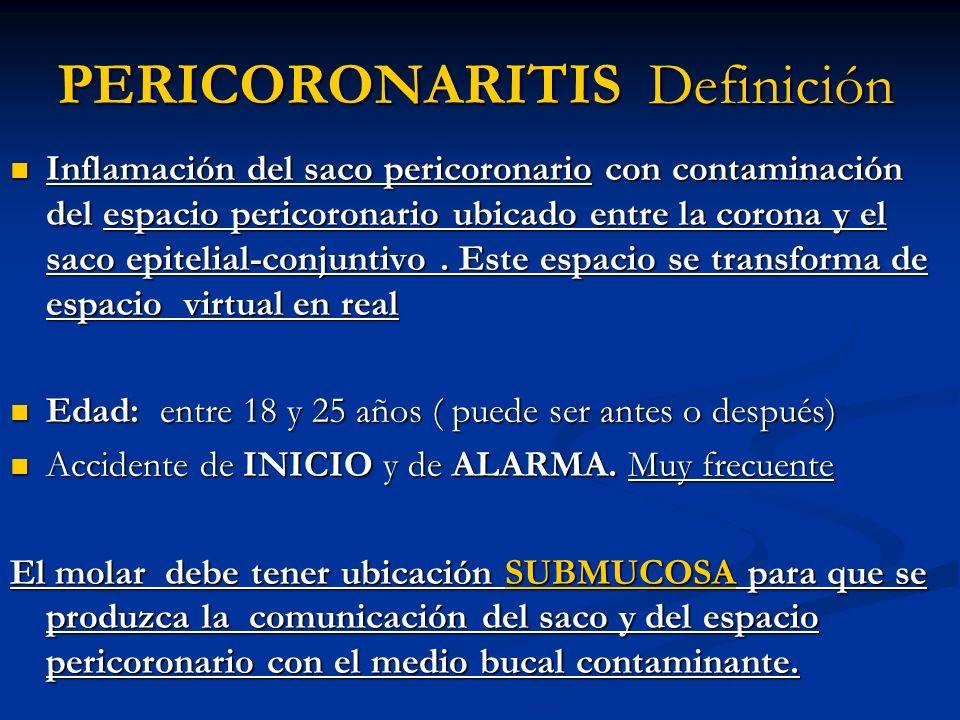 PERICORONARITIS Definición