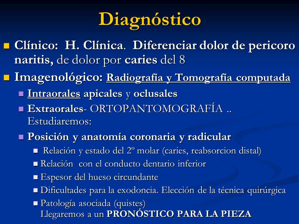 Diagnóstico Clínico: H. Clínica. Diferenciar dolor de pericoro naritis, de dolor por caries del 8.