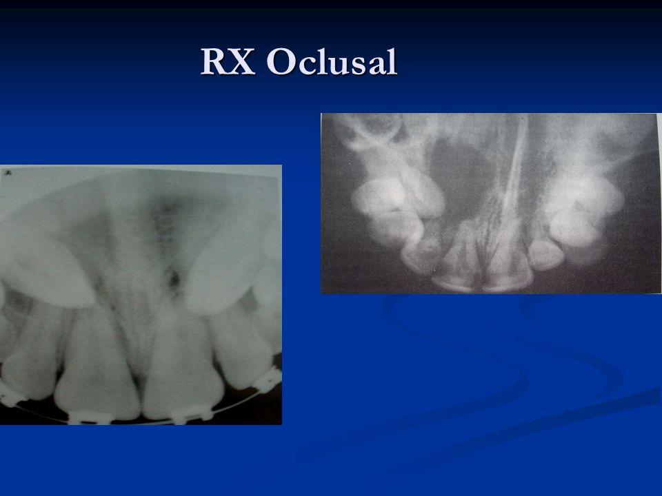 RX Oclusal