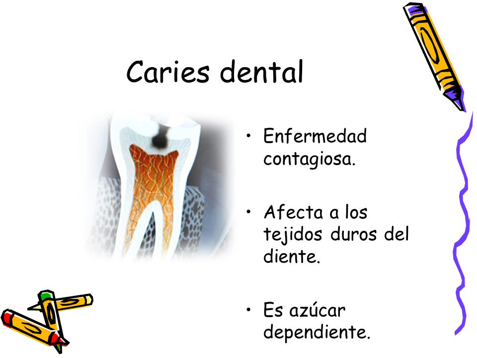 Caries dental Enfermedad contagiosa.