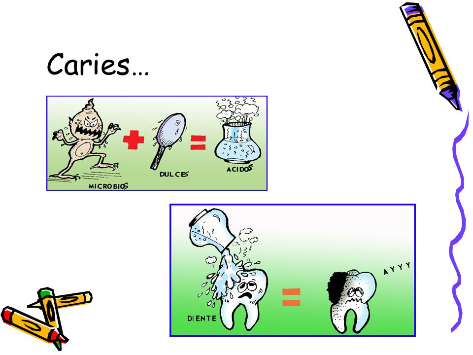 Caries…