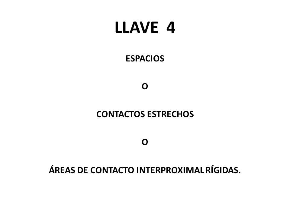 LLAVE 4 ESPACIOS O CONTACTOS ESTRECHOS ÁREAS DE CONTACTO INTERPROXIMAL RÍGIDAS.