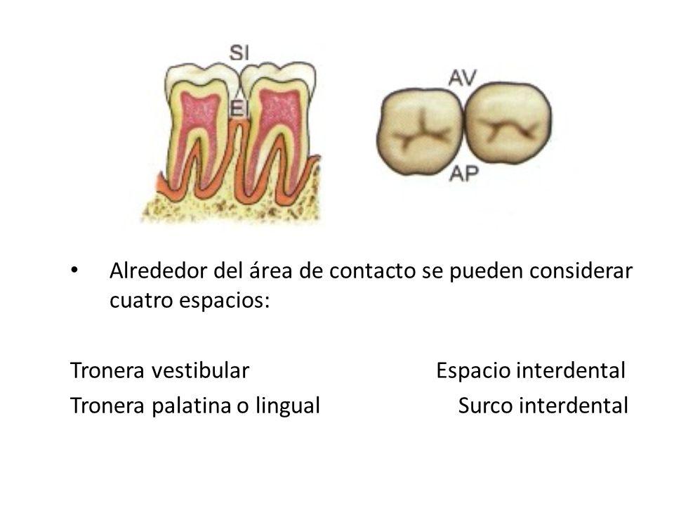 Alrededor del área de contacto se pueden considerar cuatro espacios: