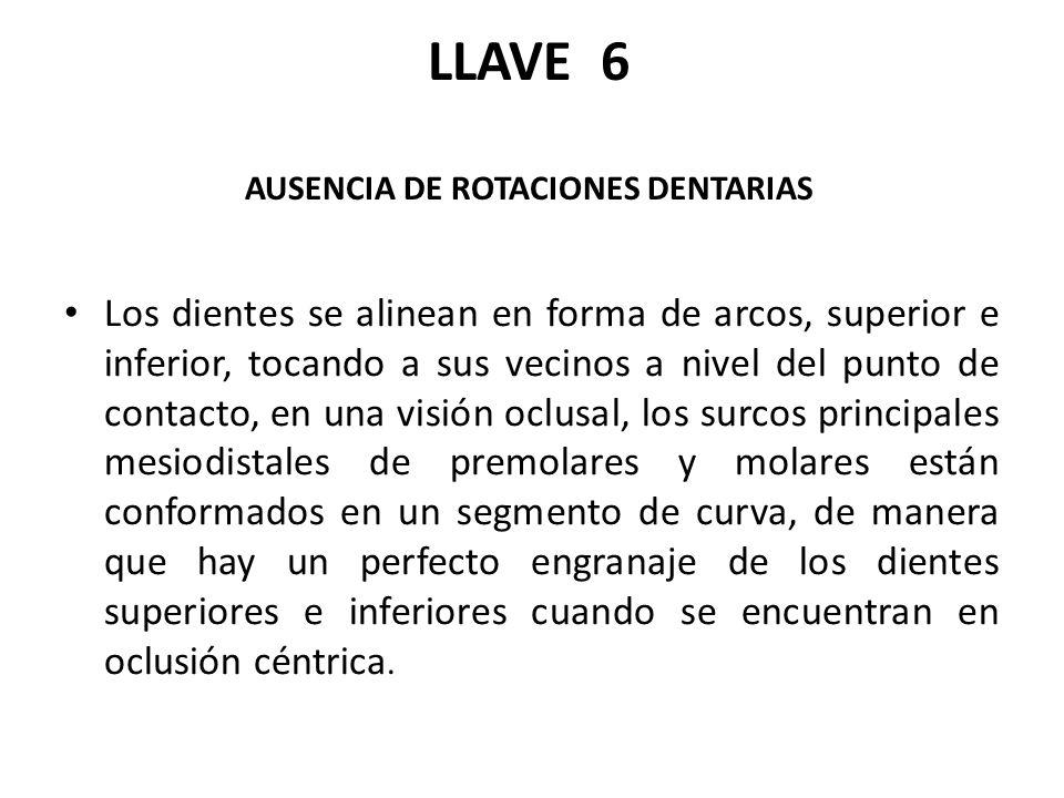 LLAVE 6 AUSENCIA DE ROTACIONES DENTARIAS