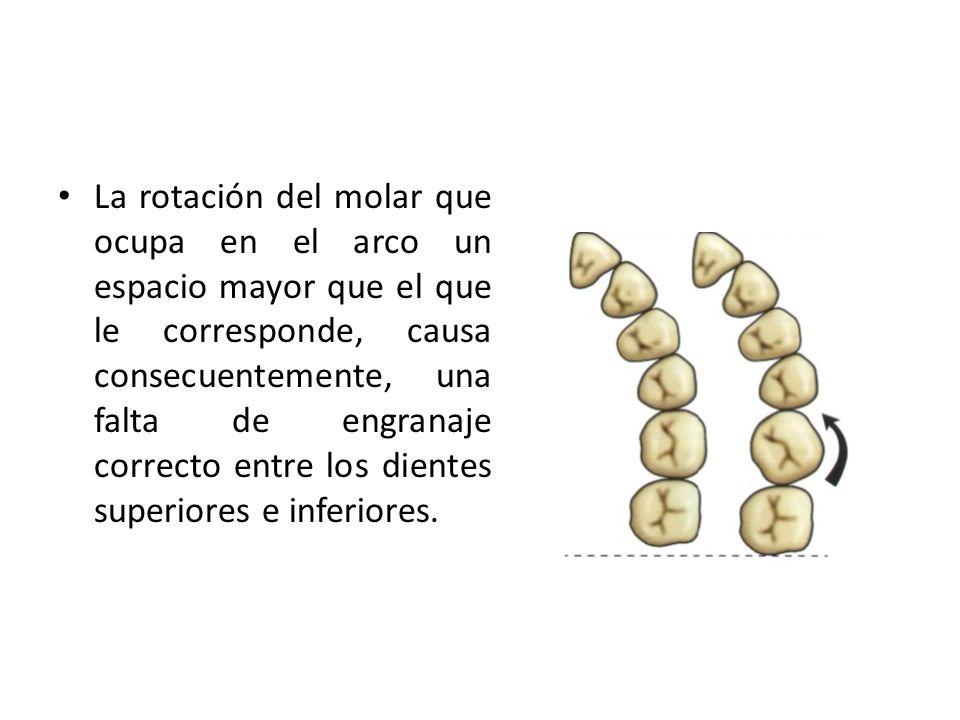 La rotación del molar que ocupa en el arco un espacio mayor que el que le corresponde, causa consecuentemente, una falta de engranaje correcto entre los dientes superiores e inferiores.