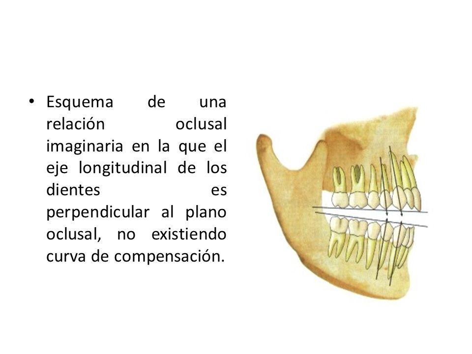 Esquema de una relación oclusal imaginaria en la que el eje longitudinal de los dientes es perpendicular al plano oclusal, no existiendo curva de compensación.