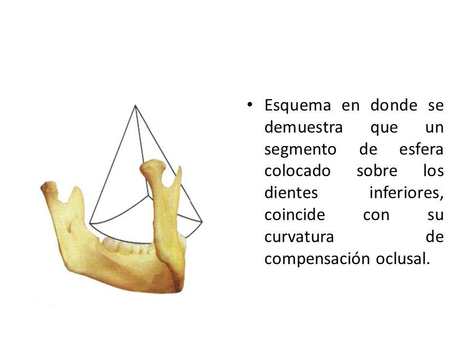 Esquema en donde se demuestra que un segmento de esfera colocado sobre los dientes inferiores, coincide con su curvatura de compensación oclusal.
