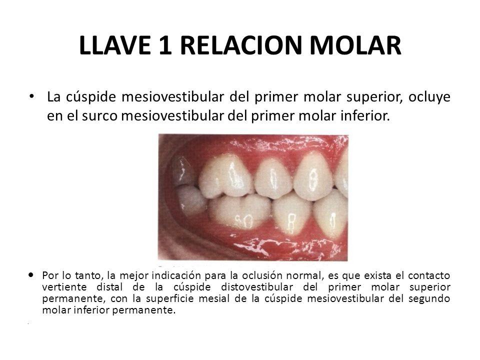 LLAVE 1 RELACION MOLAR La cúspide mesiovestibular del primer molar superior, ocluye en el surco mesiovestibular del primer molar inferior.