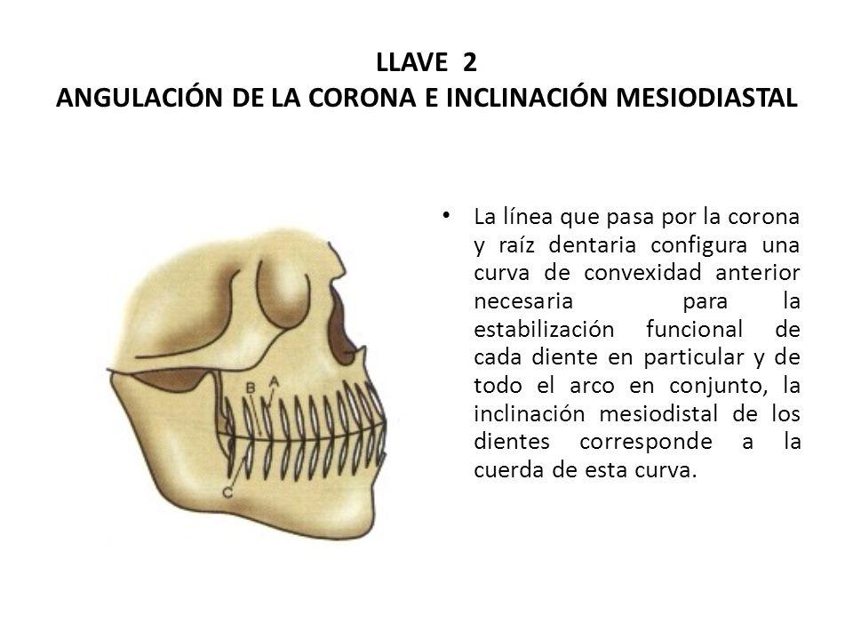 LLAVE 2 ANGULACIÓN DE LA CORONA E INCLINACIÓN MESIODIASTAL