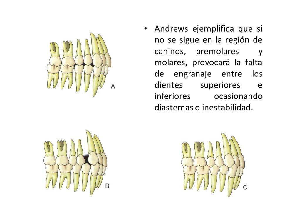 Andrews ejemplifica que si no se sigue en la región de caninos, premolares y molares, provocará la falta de engranaje entre los dientes superiores e inferiores ocasionando diastemas o inestabilidad.