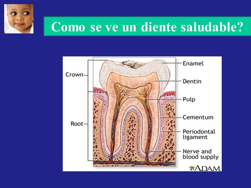 Como se ve un diente saludable