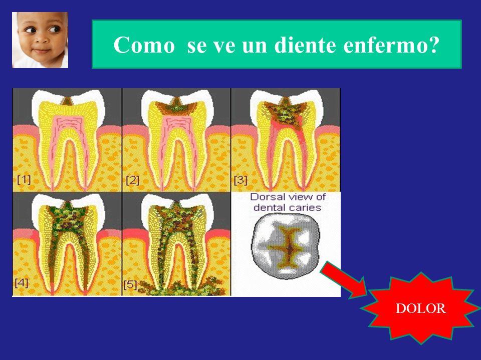 Como se ve un diente enfermo