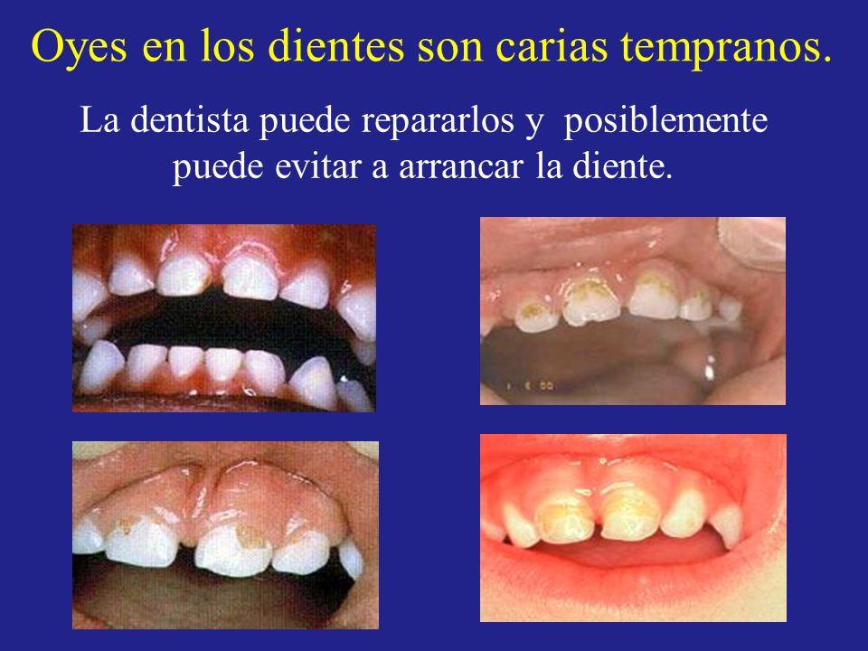 Oyes en los dientes son carias tempranos.