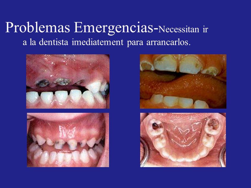 Problemas Emergencias-Necessitan ir a la dentista imediatement para arrancarlos.