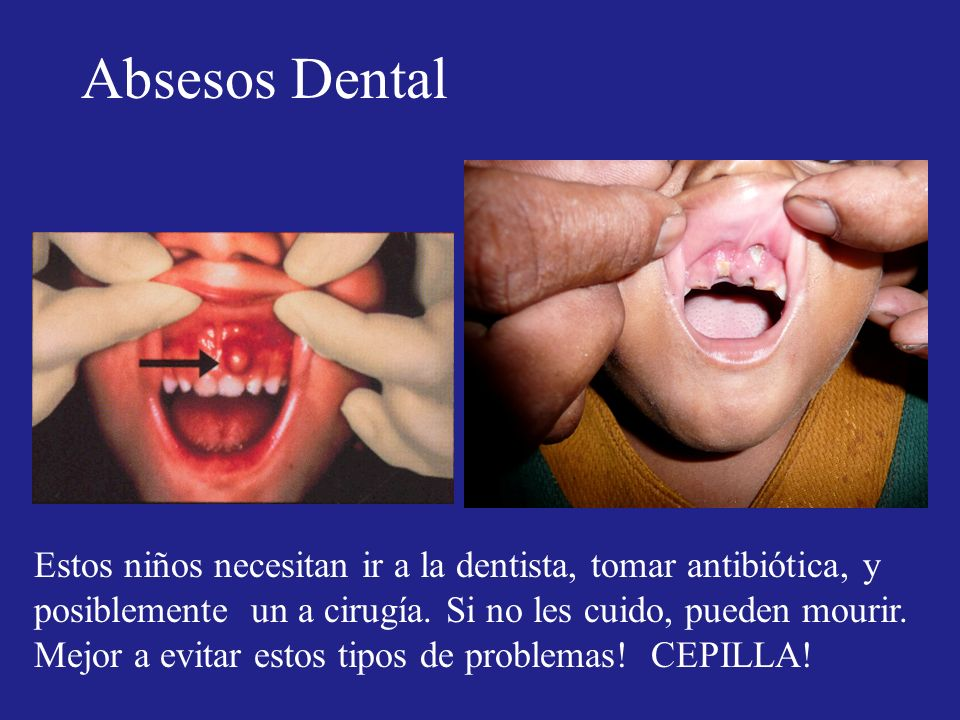 Absesos Dental Estos niños necesitan ir a la dentista, tomar antibiótica, y posiblemente un a cirugía. Si no les cuido, pueden mourir.