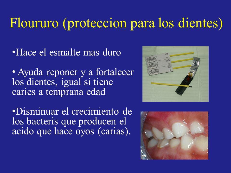 Floururo (proteccion para los dientes)