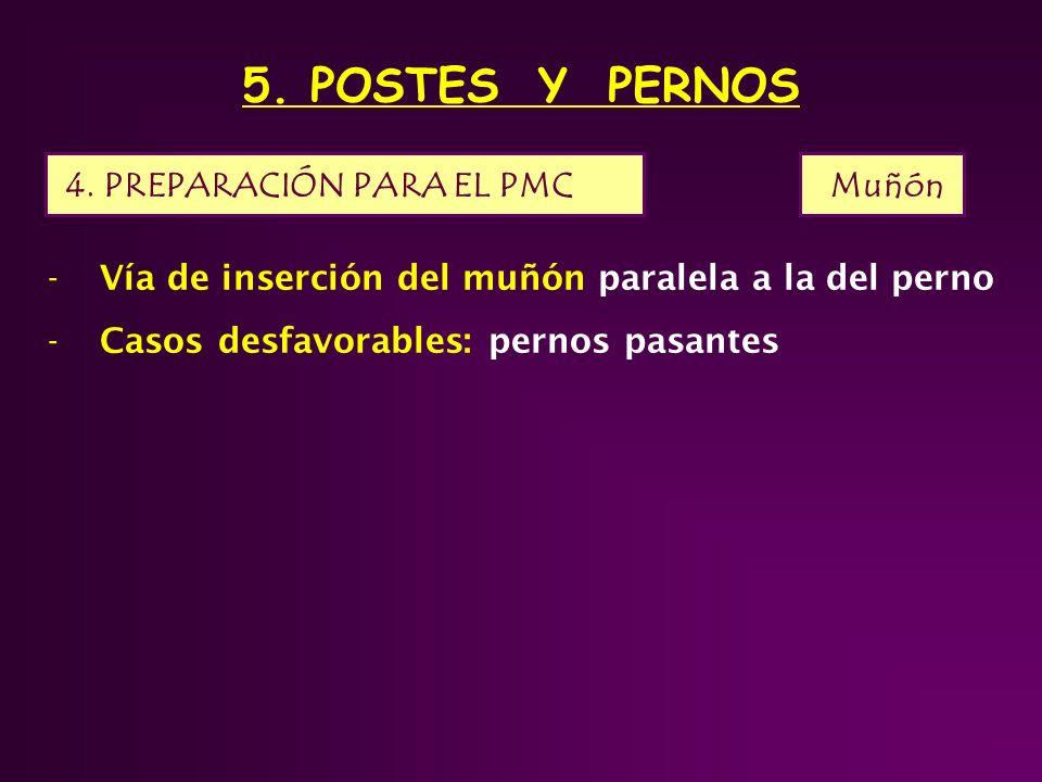 5. POSTES Y PERNOS 4. PREPARACIÓN PARA EL PMC Muñón