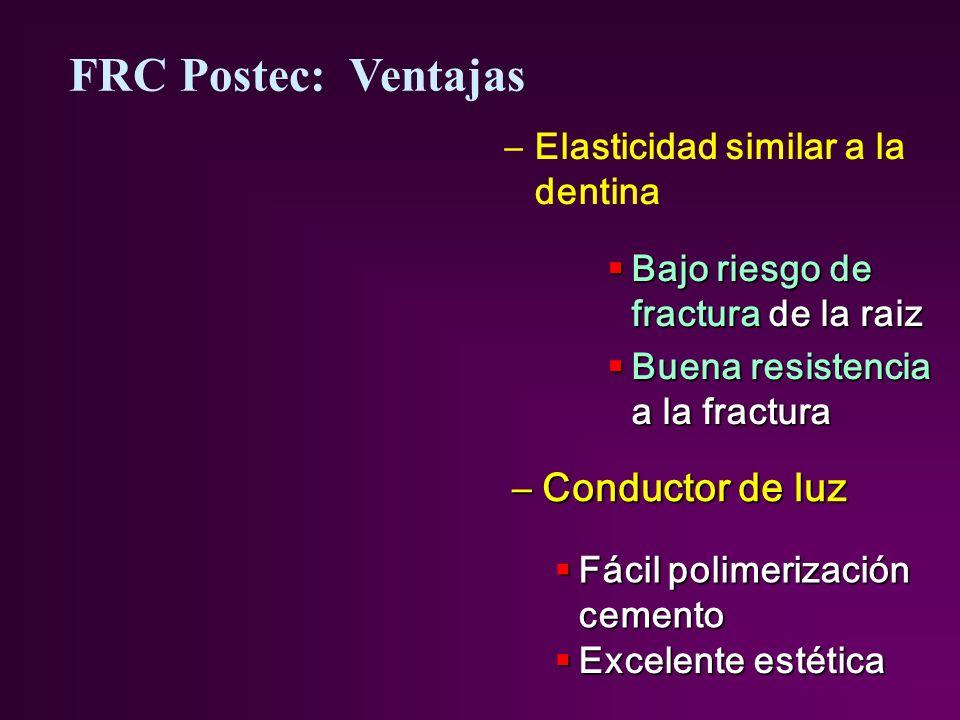 FRC Postec: Ventajas Conductor de luz Elasticidad similar a la dentina