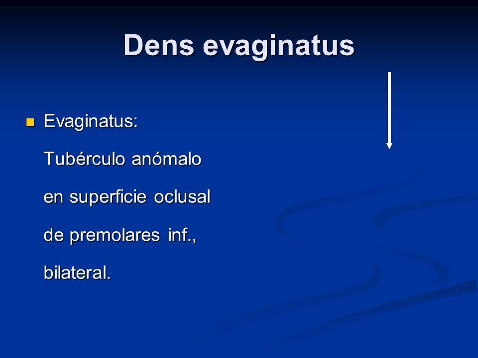 Dens evaginatus Evaginatus: Tubérculo anómalo en superficie oclusal de premolares inf., bilateral.